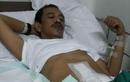 Salah Satu Pendiri dan Wartawan Senior MOTOR Plus Alami Kanker Usus Besar, Bikers Harus Tahu Gejala Penyakitnya