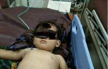 Kasihan Banget, Anak Kecil Jadi Korban Tabrak Lari Pengendara Motor Trail, Kaki Patah dan Mukanya Memar