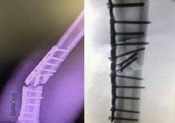 Ngilu Lihatnya, Beredar Foto Kondisi Pelat Titanium Tangan Marc Marquez Yang Patah