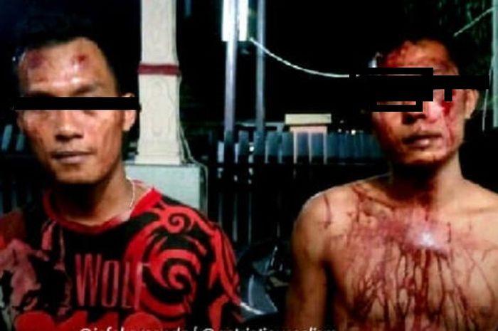 Anggota TNI babak belur dikeroyok preman di Medan, Sumatera Utara.